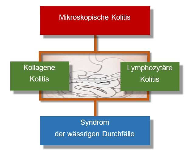 Mikroskopische Kolitis -  Chart-Grafik